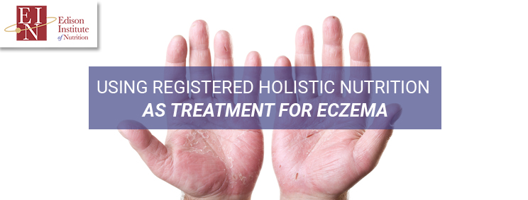 Using Registered Holistic Nutrition as Treatment for Eczema | Online Nutrition Training Course & Diplomas | Edison Institute of Nutrition